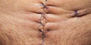 Ce n'est plus de la science fiction: ce laser referme vos blessures en 15 minutes et sans aucun point de suture