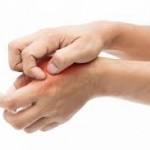 Psoriasis, zona, ces problèmes de peau qui nous gâchent la vie, approche médecine chinoise